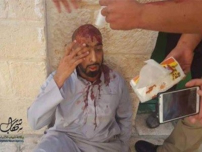 An injured worshiper after being beaten up by Israeli troops. (Photo: Shehab Video Grab, Twitter)