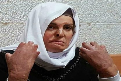 She is 'Being Destroyed Every Day': Palestine Chronicle Interviews the Sister of Israa Jaabis (VIDEO)